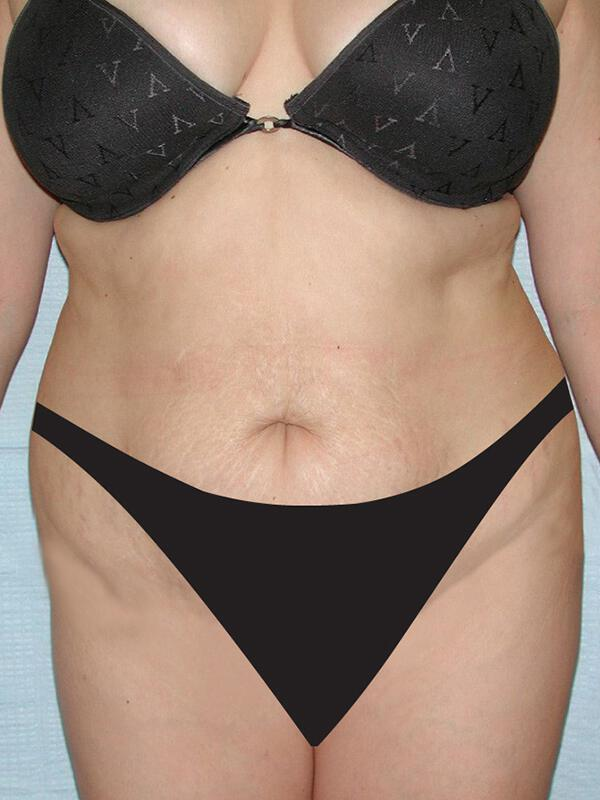 Tummy tuck before & after photo