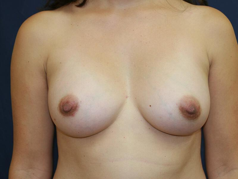 Breast augmentation before & after photo