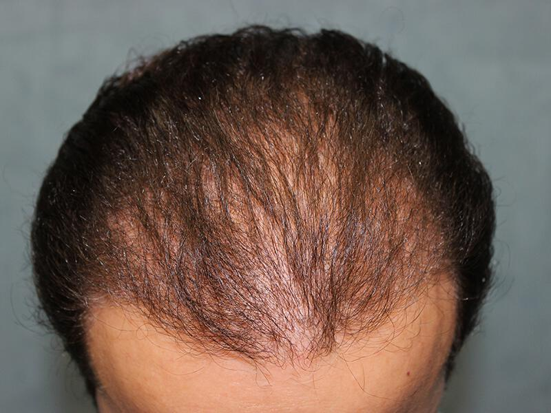 Neograft before & after photo